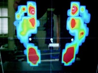 Análisis de las presiones plantares con plataforma de fuerzas