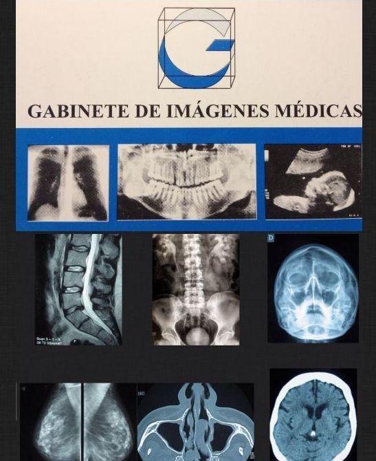 Catálogo de exploraciones: Productos  de Gabinete de Imágenes Médicas