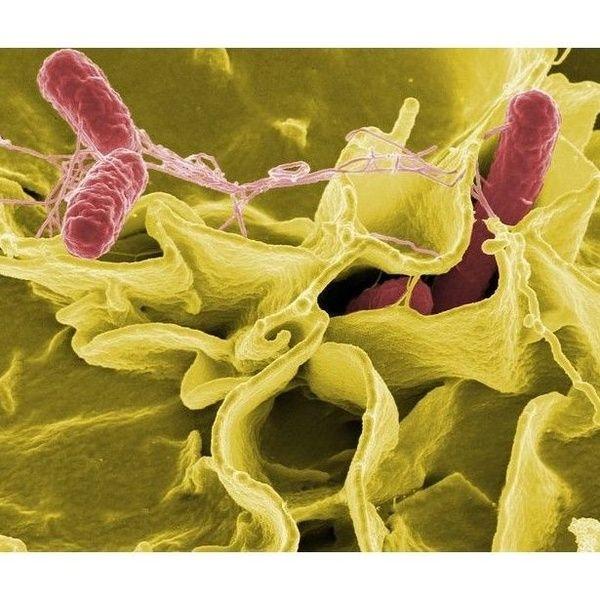 Tratamientos de desinfección en todo tipo de instalaciones en Barcelona