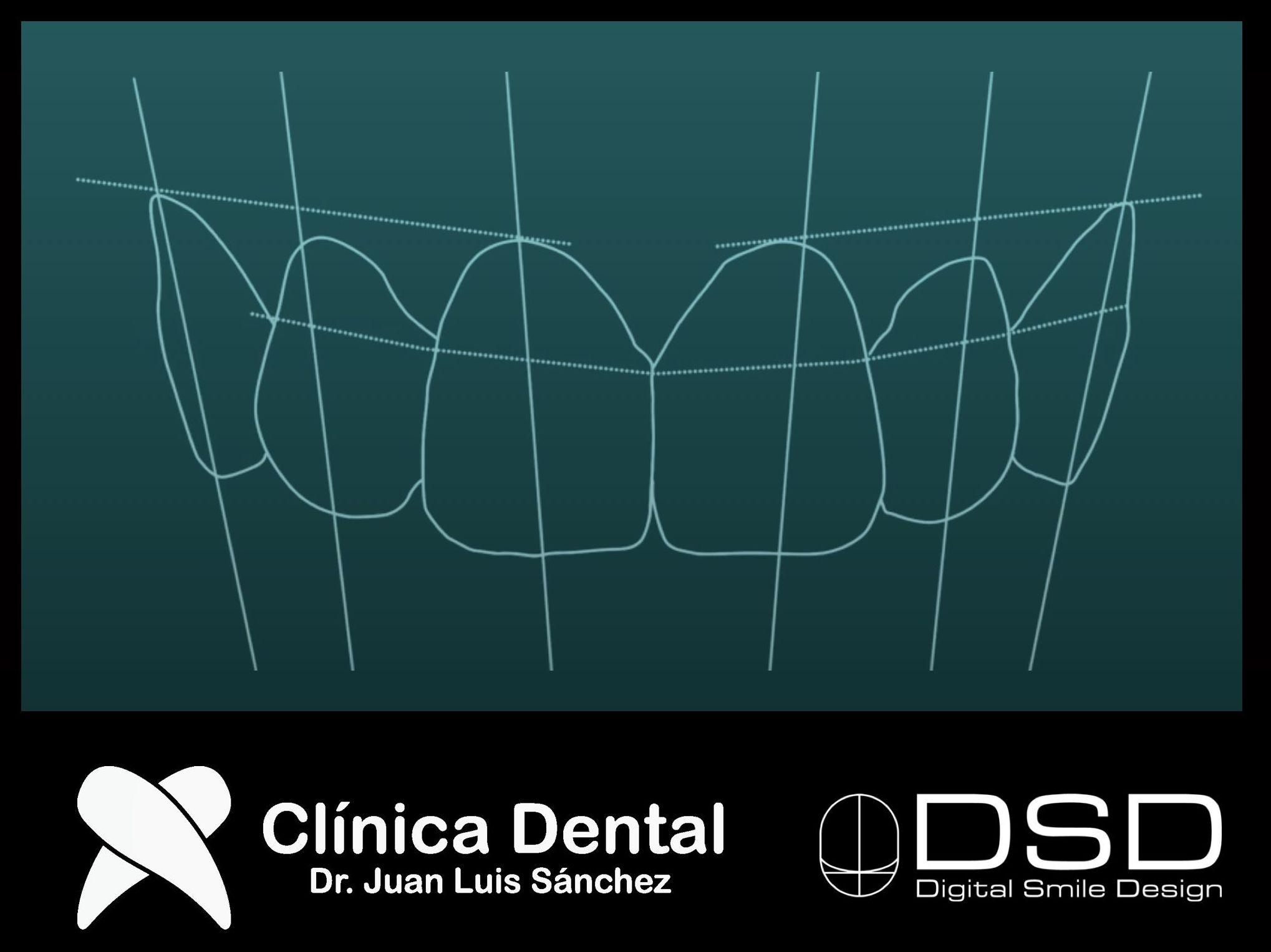 Estética dental : Especialidades de Clínica Dental Dr. Juan Luis Sánchez