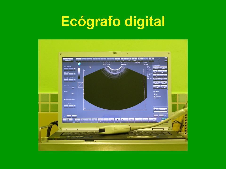 Ecógrafo digital