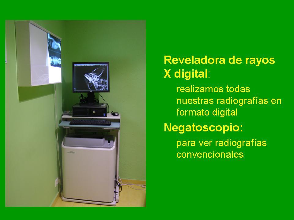 Reveladora de Rayos X digital. Negatoscopio.