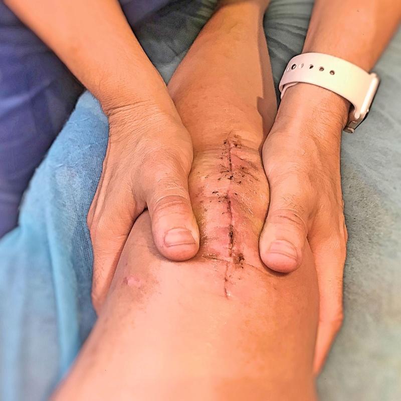 Fisioterapia pre y post quirúrgica: Tratamientos y cita de Optima Fisioterapia