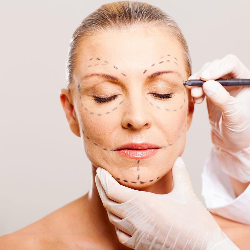 Lifting Facial: Tratamientos de Clínica Dra. Darinka Garay