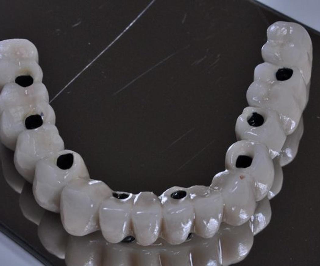 Los útlimos avances en implantología dental