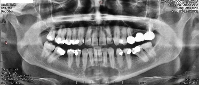 Panorámica de diagnóstico realizada el 9 de junio de 2015