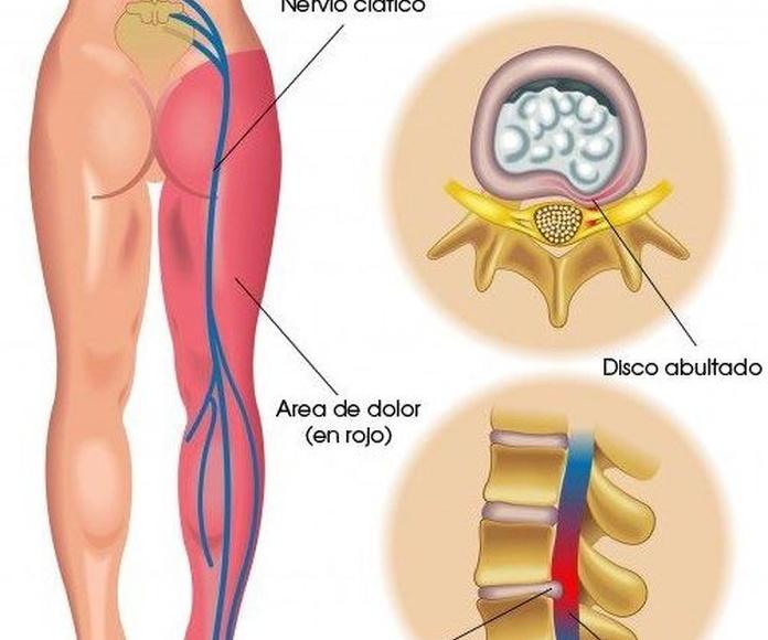 Ciática o ciatalgia