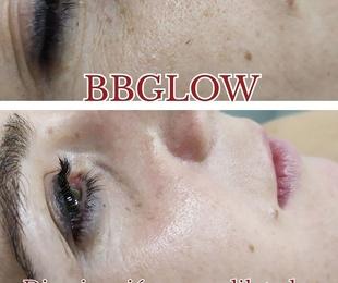 Tratamientos Bbglow