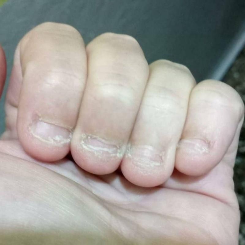 Ejemplo de uñas onicofagia