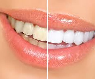 Prótesis dental: Servicios  de Centro Dental Bizkai-Dent