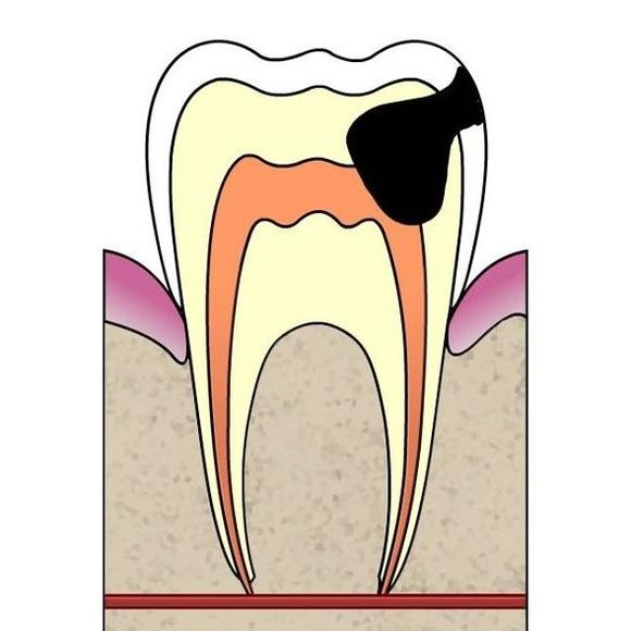 Endodoncia: Tratamientos dentales de Clínica Dental Llanos