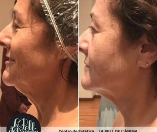 Tratamiento facial Ericson