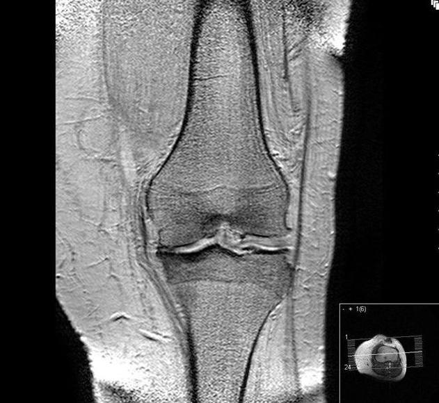 90% de prótesis de rodilla que se implantan en España son para corregir los efectos de la artrosis