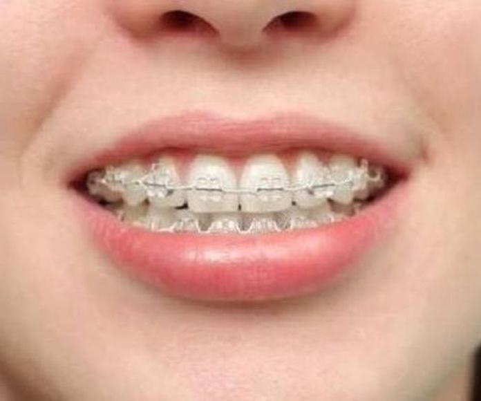 oferta de ortodoncia,clínica dental hortaleza,,dentista hortaleza,clínicas dentales hortaleza,dentistas en hortaleza,