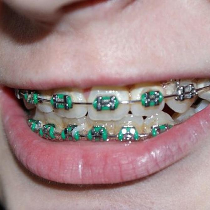 Brackets: invierte en tú sonrisa