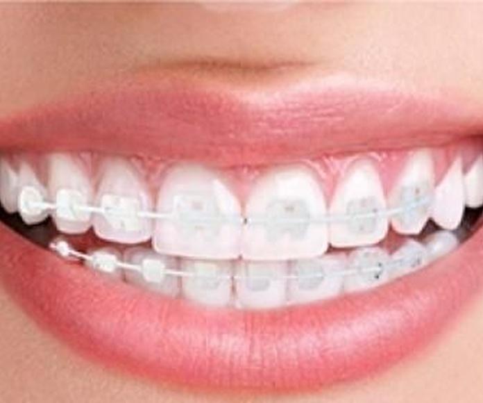Ortodoncia convencional: Tratamientos de Clínica Dental Ruiz Jalón