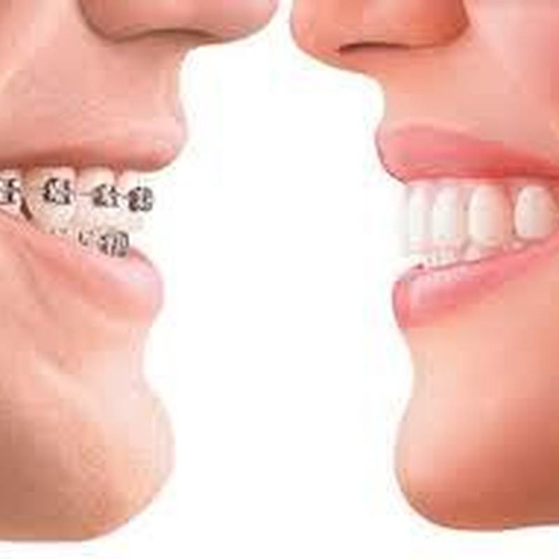 Ortodoncia: Servicios  de Centro Dental Bizkai-Dent