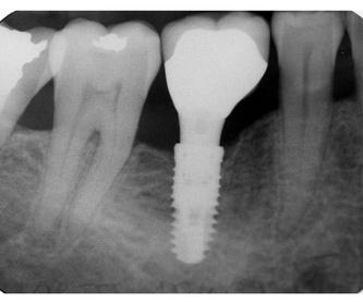 Odontología general: Servicios de Future Centros Dentales Avanzados