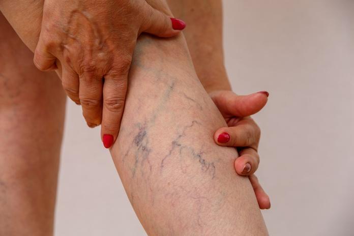 Tratamientos de Arañas Vasculares con IPL/Láser: Tratamientos de Dr. Felipe  Bárcenas