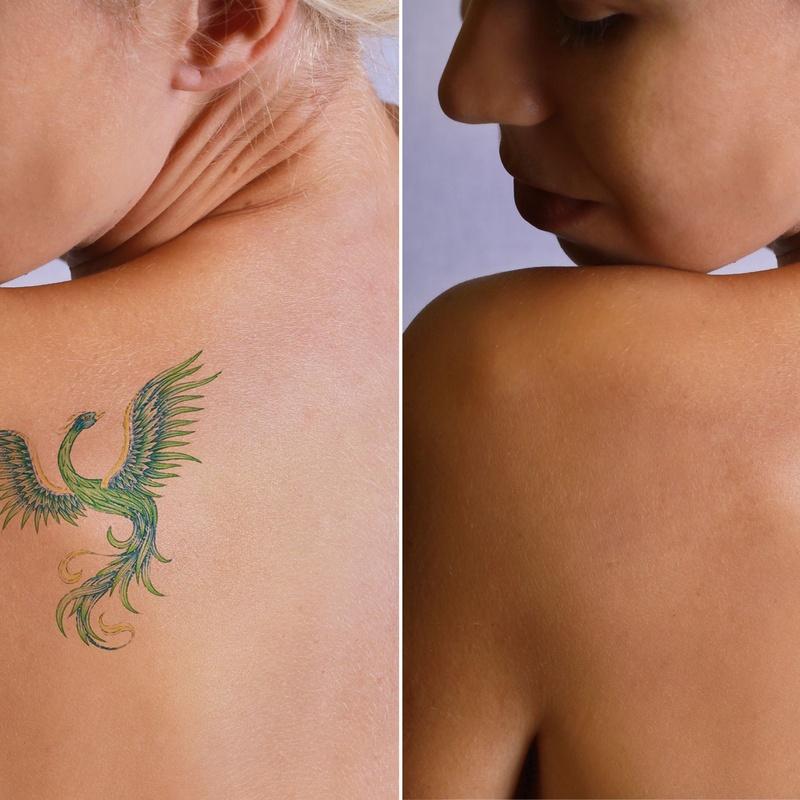 Eliminación de tatuajes: Tratamientos de Fabián Mirón Medicina Estética