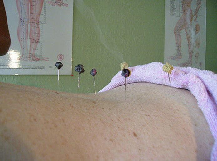 Moxibustión: Servicios de Acupuntura Médica Dr. Espinosa de los Monteros