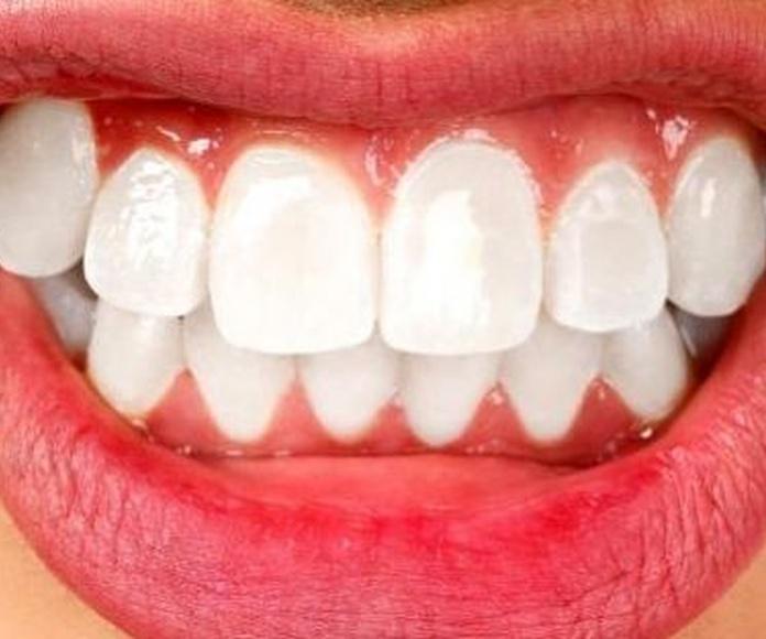 ¿ Sabes que rechinar los dientes puede provocar sensibilidad dental ?