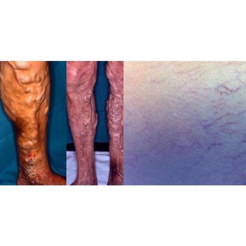 Arañas vasculares. Varices y sus complicaciones. : Productos y servicios de Consulta Barreiro-Vascular (Dr. A. Barreiro Mouro)