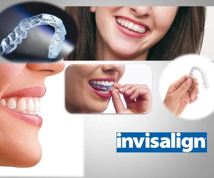 Ortodoncia invisible Baza
