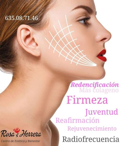 Radiofrecuencia facial.