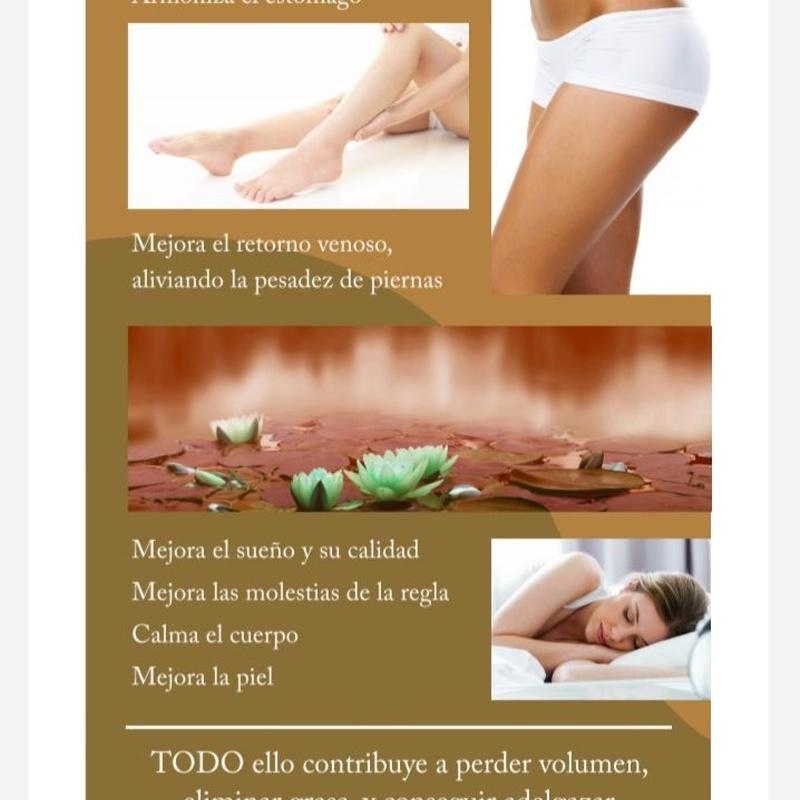 Beneficios acupuntura