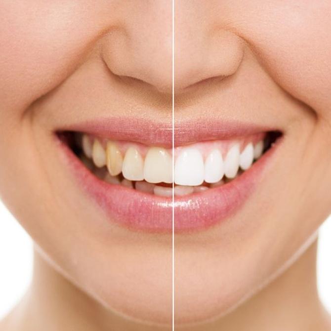 Los beneficios del blanqueamiento dental