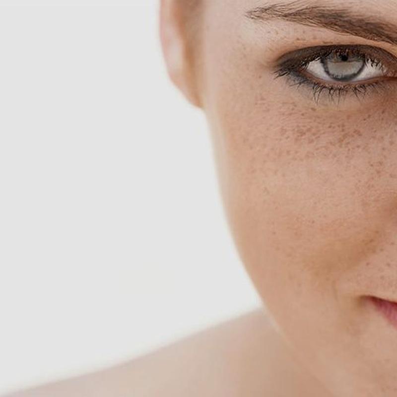 Even.  Solución a las manchas cutáneas: Tratamientos de Equilibra Estética Avanzada