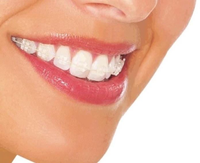 Sistema Damon: Tratamientos y tecnología  de Clínica Dental Los Milagros