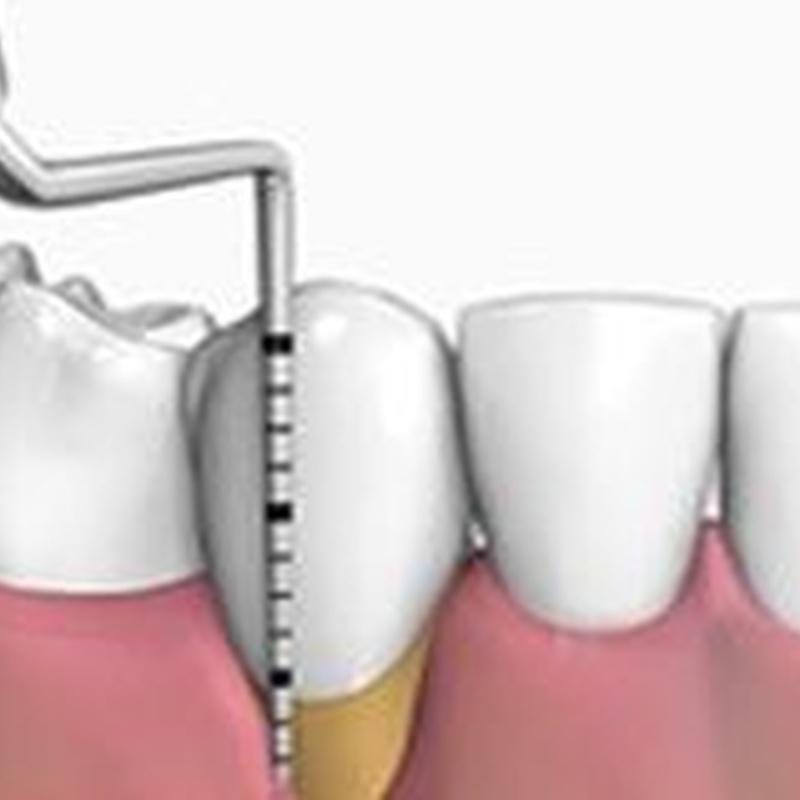 Periodoncia: Tratamientos de Dens Clínica Dental