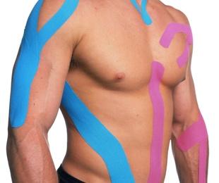 Para qué sirve el kinesiotaping o vendaje neuromuscular
