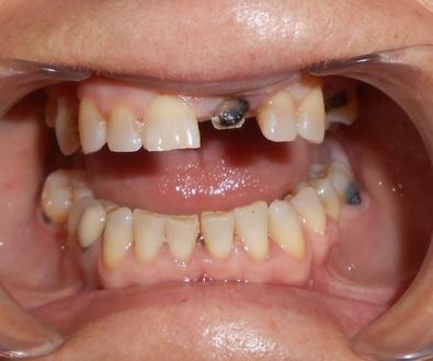 Implantes post-extracción y de carga inmediata