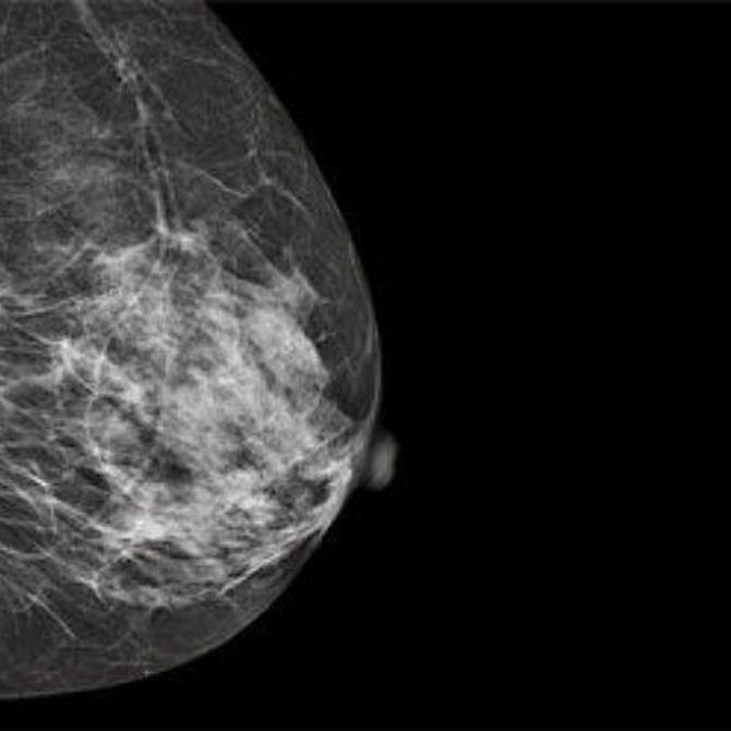 Características y beneficios de las mamografías