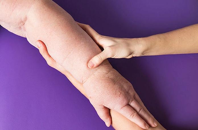 Drenaje linfático manual en fisioterapia: Catálogo/Servicios de Cefirem