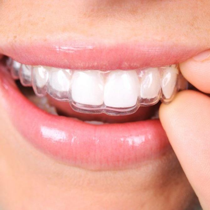 Comer con la ortodoncia invisible