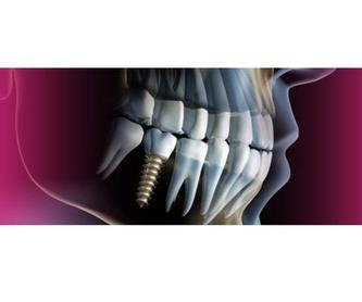 Carga inmediata: Tratamientos de Dental Park