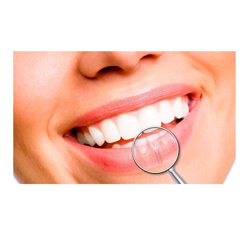 Implantología: Servicios de Dental Implantes