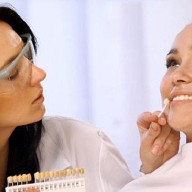 Consejos para el cuidado y mantenimiento de implantes dentales
