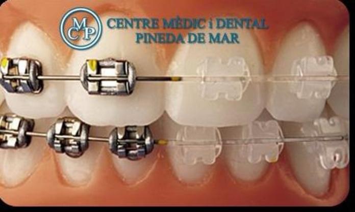 ORTODONCIA: Tratamientos  de Centro Médico y Dental Pineda