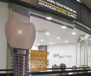 Implantes dentales más corona en Ciudad Real