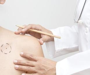 Doctor Adolfo Álvarez Ramos.Médico Diplomado en Dermatología por la Universidad de Londrés.