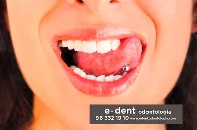 Piercings y otras modas que estropean los dientes