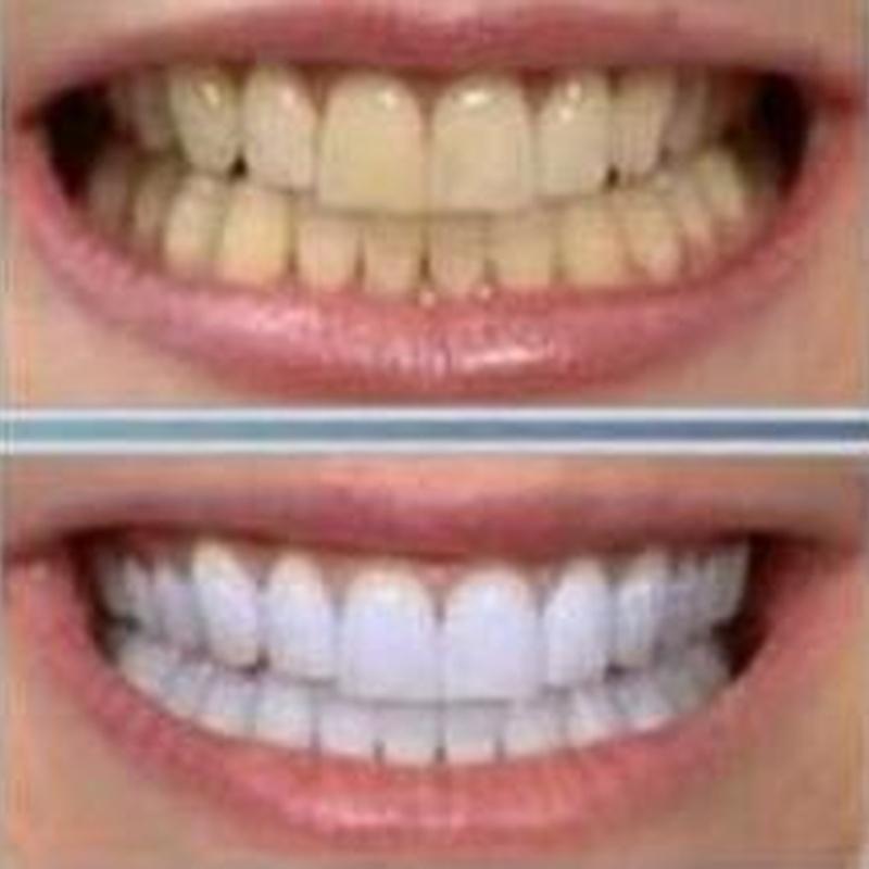 Limpiezas : Servicios de Clínica Dental Dra. Charo Díez