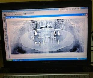 Panorex dental