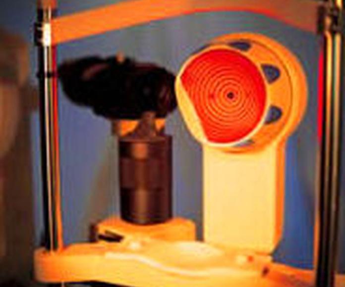 ortokeratología, efectiva en el control de miopía
