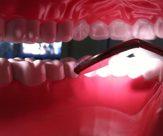 clínica dental hortaleza, dentista hortaleza, póliza dental familiar.